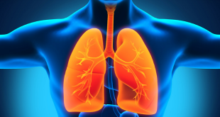 Xơ phổi vô căn