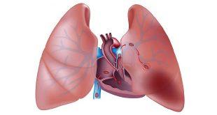thuyên tắc phổi