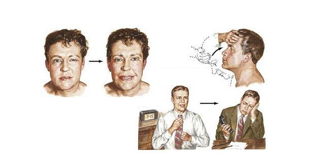 Bệnh nhược cơ