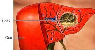 Áp-xe gan nguyên nhân và phương pháp điều trị