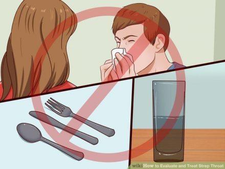 Viêm họng liên cầu