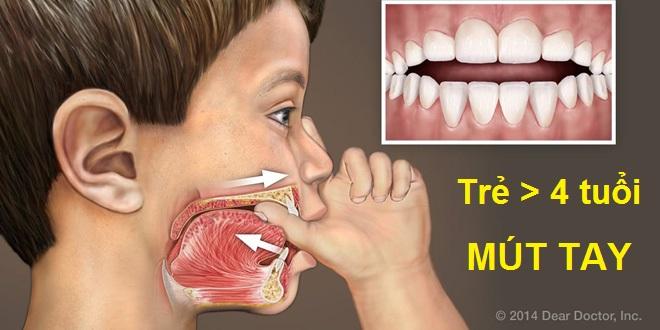 Bé trên 4 tuổi hay mút ngón tay cái bị hô răng