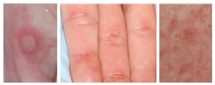 Các ảnh hưởng của da khi dùng thuốc ung thư