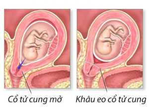 Khâu eo cổ tử cung