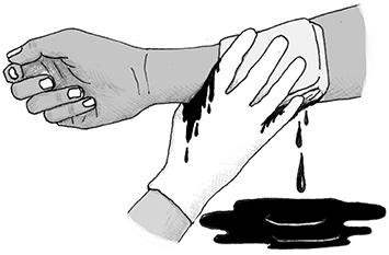 Triệu chứng của xuất huyết
