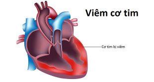 Viêm cơ tim là gì