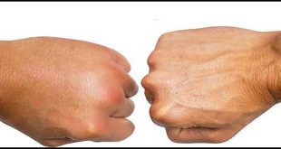 ứ dịch hoặc phù nề trong quá trình điều trị ung thư