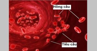 giảm tiểu cầu trong điều trị ung thư