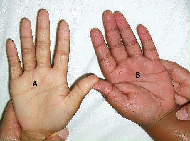 Bàn tay nhợt