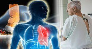 Điều trị ung thư phổi tế bào nhỏ