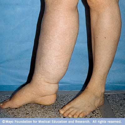 Triệu chứng phù bạch huyết ở chân