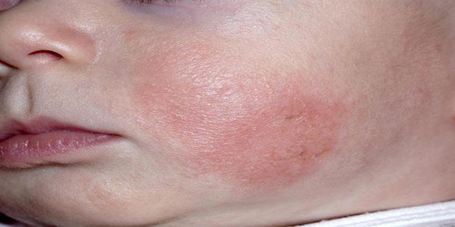 chàm da của trẻ nhỏ