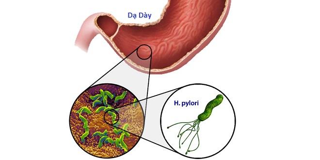 Ngăn ngừa tái phát ung thư dạ dày