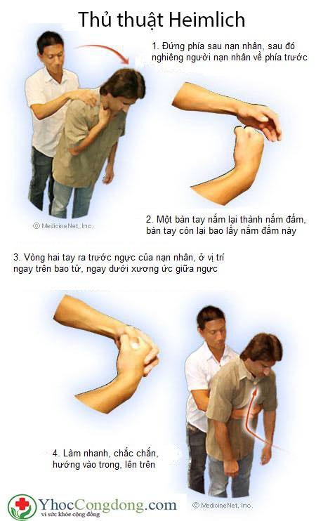 Thủ thuật heimlich