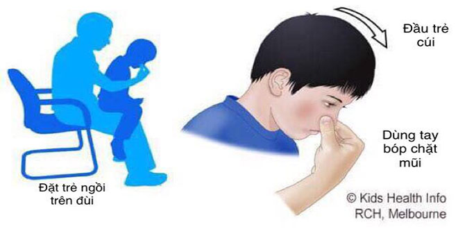 Sơ cứu tại nhà – Chảy máu mũi