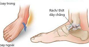 Sơ cứu trật mắt cá chân