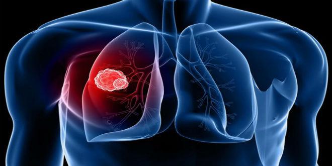 điều trị ung thư không tế bào nhỏ