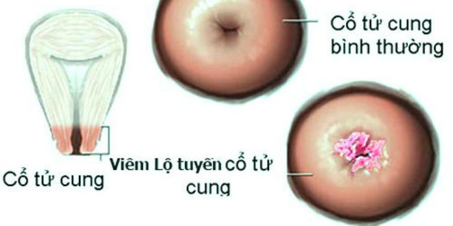 Hỏi đáp về viêm âm đạo và lộ tuyến cổ tử cung