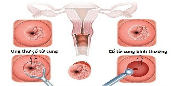các yếu tố nguy cơ và cách tầm soát ung thư cổ tử cung