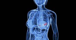 ung thư vú di căn xương