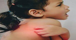 Bệnh vảy phán trắng ở trẻ em