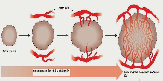 các chất ức chế sự hình thành mạch máu trong điều trị ung thư