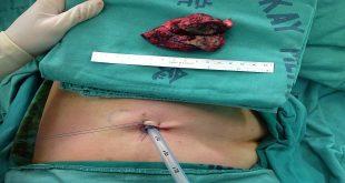 Tác dụng không mong muốn của phẫu thuật