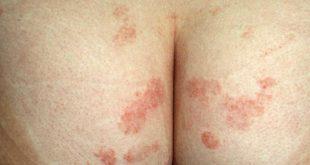 Chốc - Nhiễm trùng da