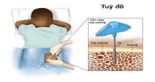 chọc hút tủy xương và sinh thiết tủy xương dưới gây mê