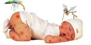 Phân biệt sốt xuất huyết và sốt phát ban