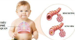 Viêm tiểu phế quản co thắt ở trẻ
