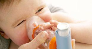 Nhiễm khuẩn hô hấp cấp ở trẻ em