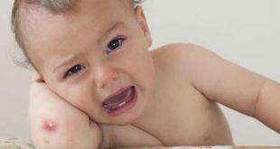 Nhọt da ở trẻ em