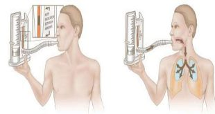 Những động tác tập thở dùng phế dung kế để kích thích