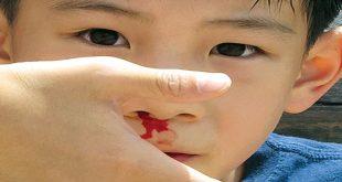 Phòng ngừa hiệu quả chứng chảy máu cam ở trẻ em