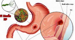 Viêm dạ dày và nỗi ám ảnh của vi trùng HP