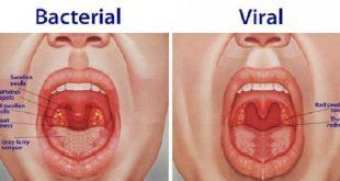 Viêm họng và viêm amidan cấp