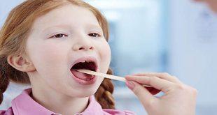 Khi nào cần cắt amidan cho trẻ?