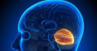 Mất điều hòa (thất điều) và rối loạn chức năng vận động tiểu não