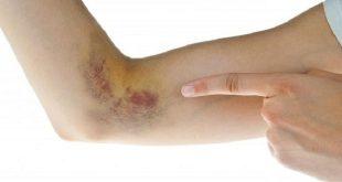 Phòng ngừa và chữa trị sưng hạch bạch huyết ở cánh tay: https://quaynong.wordpress.com/tag/sung-hach-bach-huyet/