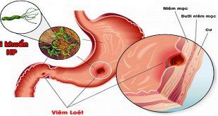 Vi khuẩn Helicobacter pylori (H. pylori) và nguy cơ ung thư dạ dày.