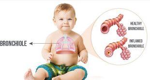 Viêm tiểu phế quản cấp ở trẻ
