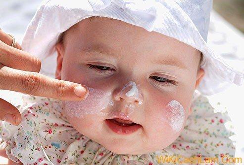 Điều trị chàm (lác sữa) ở trẻ em