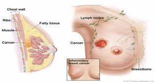 Tóm lược cách tiếp cận Ung thư vú giai đoạn chưa di căn