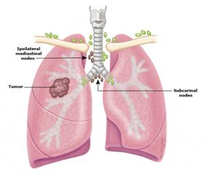 điều trị ung thư phổi tế bào nhỏ 3
