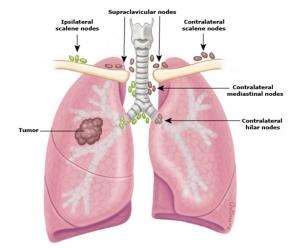 điều trị ung thư phổi tế bào nhỏ 4