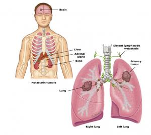 điều trị ung thư phổi tế bào nhỏ 5