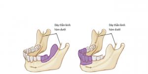 phẫu thuật cắt bỏ xương hàm dưới