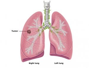 ung thư phổi tế bào nhỏ 1