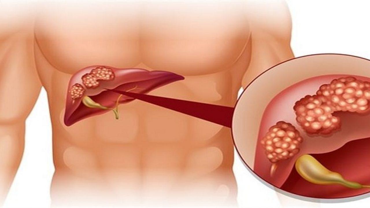 Tổng quan về ung thư gan - Y Học Cộng Đồng
